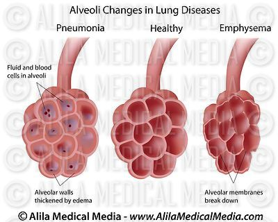 Lung diseases, labeled.