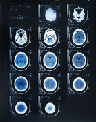 Computed Tomography (CT) brain scans