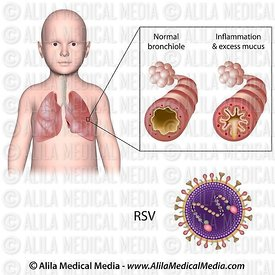 Bronchiolitis caused by RSV