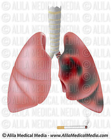 Smoker's lung (with cancer) versus healthy lung