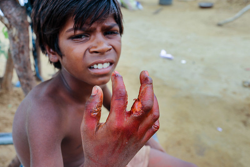 We cared for our student Arjun's hand for two months after an electrical burn