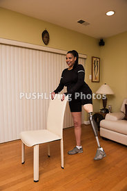 Woman with a prosthetic leg stretching and exercising
