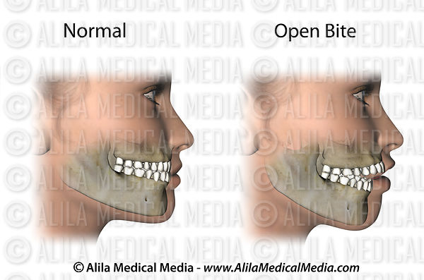Open bite anatomy