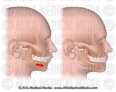 Corrective surgery for retruding lower jaw