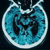 Alzheimer CT brain scan