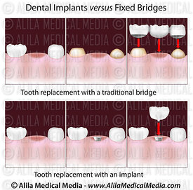 Implants dentaires versus ponts fixes