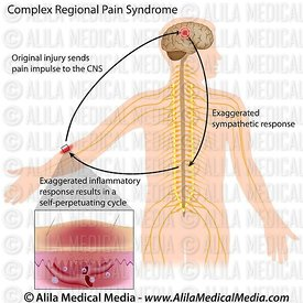Complex regional pain syndrome.