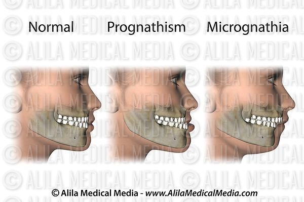 Common jaw abnormalities (mandibular)