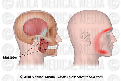Trigger points and referred pain for the masseter