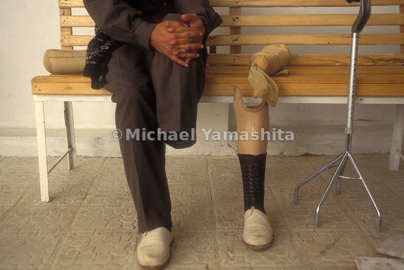 A mine victim receives a prosthetic leg at Diana Prosthesis Center in Iraq.