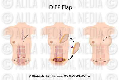 DIEP flap breast reconstruction surgery.