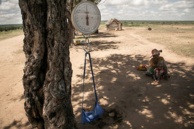 A baby scale is hung on a tree branch during a malnutrition screening session in the Commune of Ifotaka, in southeast Madagas...