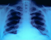 Thoracic X-ray
