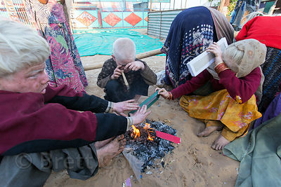 Three albino children put cardboard on a fire to stay warm. They're shielding their eyes due to the sunlight, Pushkar, Rajast...