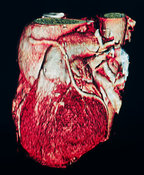 Electron beam tomography scan of human heart