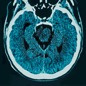 CT brain scan of healthy older person