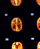 PET scan of normal human brain