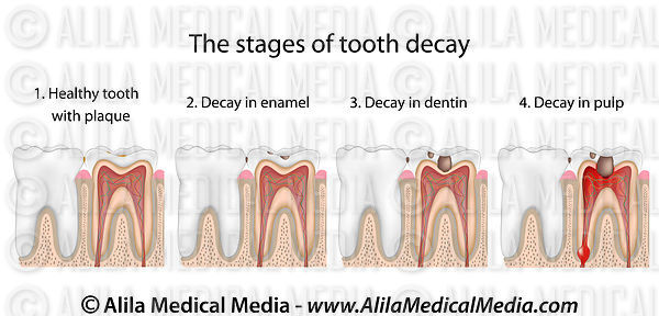 Stages of tooth decay.