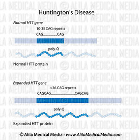 Huntington's disease CAG repeats