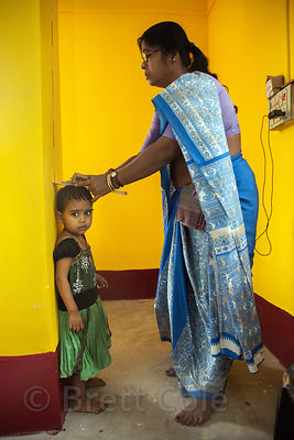 A toddler's height is measured as part of malnutrition program at the Swastha Kendra clinic operated by the NGO Calcutta Kids (calcuttakids.org) in the Fakir Bagan area of Howrah, India