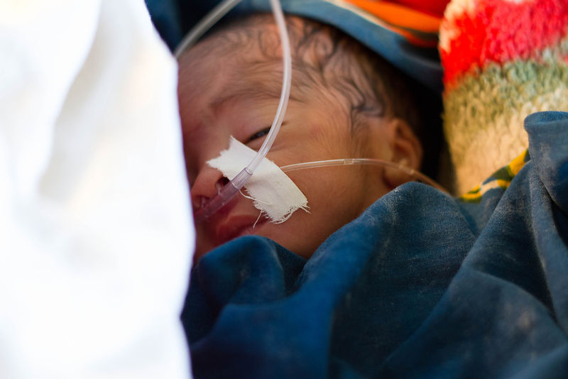 Premature baby, Segerema Hospital, northern Tanzania.