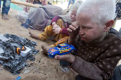 Albino boy plays with a toy car I gave him as a gift, Pushkar, Rajasthan, India. The family of ten albinos is panhandling dur...