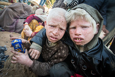 Albino brothers play with a toy car I gave them as a gift, Pushkar, Rajasthan, India. The family of ten albinos is panhandlin...