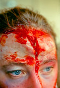 Medical and injury make-up by Casualties Union