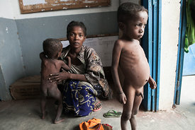 This picture taken on March 4, 2015 shows a woman and her two severely malnourished children (16 months and 5 years old) wait...