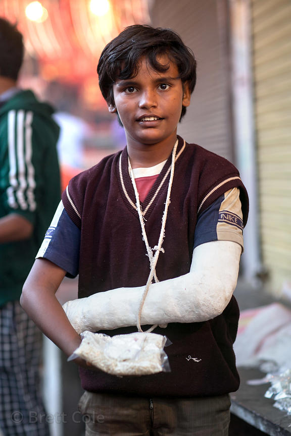 Boy with broken hand and arm after a motorcycle accident, Pushkar, Rajasthan, India
