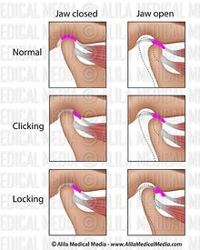 Temporomandibular joint dysfunction, TMJ or TMD