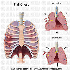 Flail chest.