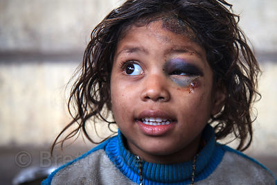 "A girl with a ""black-eye"" smiles for a portrait while receving care at a free health clinic run by the French NGO Agir pour B..."
