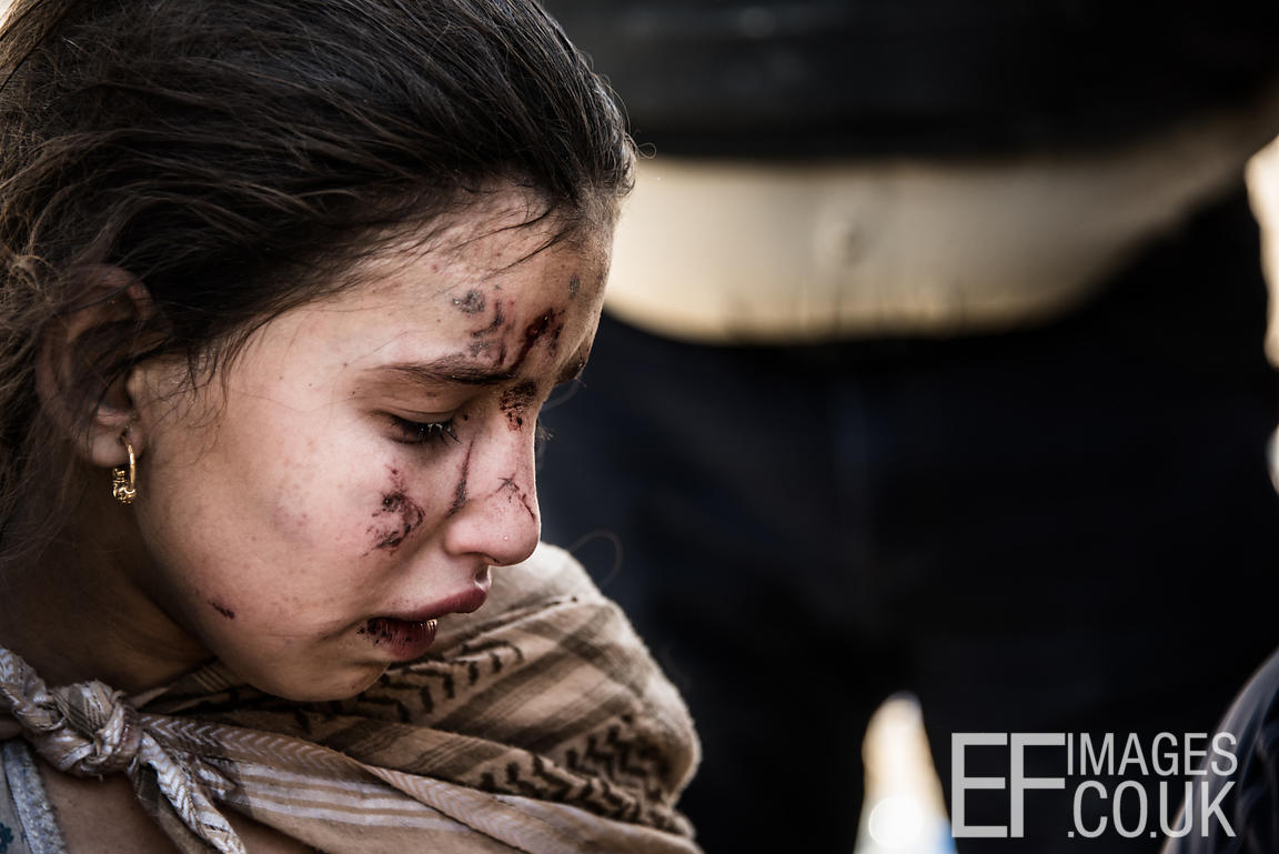 Suffering shrapnel wounds while fleeing from her home in the Old City district of West Mosul, this girl became separated from...