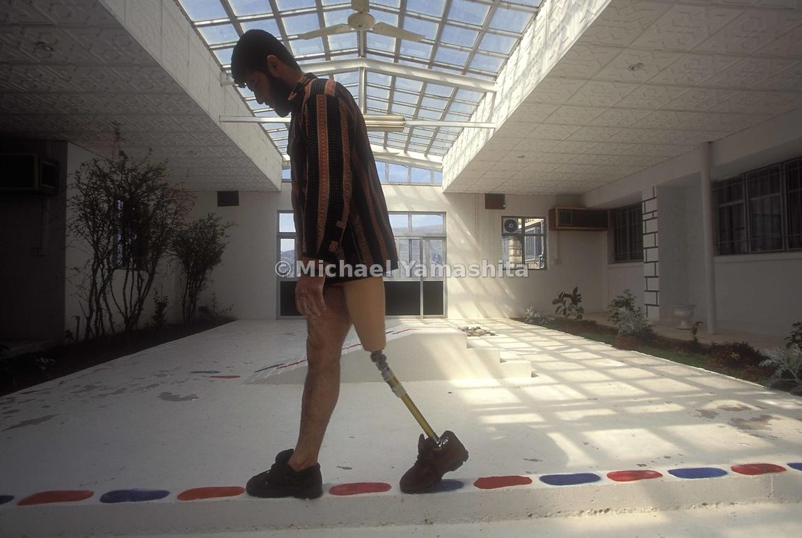 An amputee relearns the ability to walk by walking along a path in a Prosthesis Center.