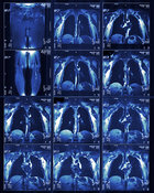 Deep  vein thrombosis scanning of legs & lungs
