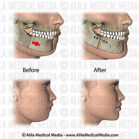Corrective jaw surgery for micrognathia