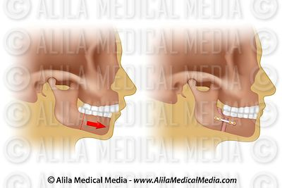 Corrective surgery for retruding lower jaw (v2)