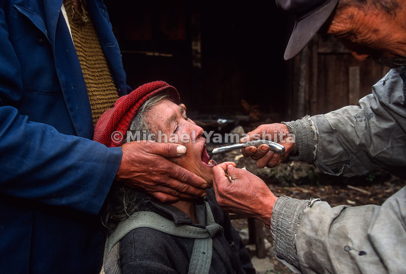 Dentist, Li Zin Yun, 65, pulls woman's teeth using dental tools left by National Geographic explorer, Joseph Rock..Yuhu, Yunn...