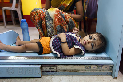 A baby is measured at a clinic in Howrah, India. Early childhood malnutrition is epidemic in India.