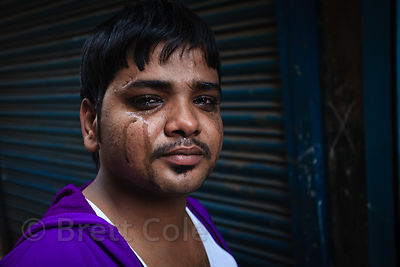 A man in Howrah, India, sister city to Kolkata, after having his eyes washed.