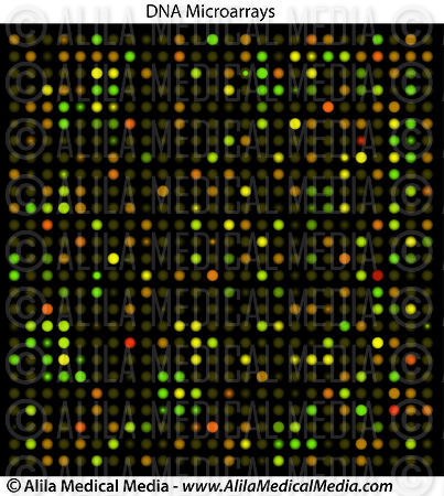 DNA microarrays, used in ex. cancer research