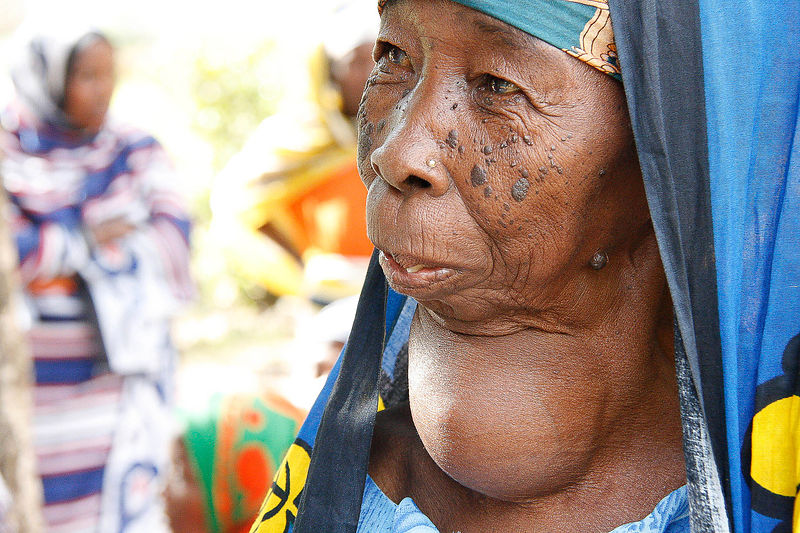 An elderly woman with Goiter seeks treatment at a Zanzibar Outreach medical camp in Kitope, Zanzibar 11 October, 2010. Ironic...