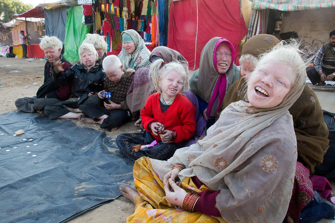 A family of ten albinos living near Pushkar, Rajasthan, India. They're panhandling during the Pushkar Camel Fair.