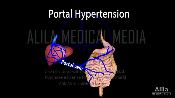 Hypertension portale, animation en anglais