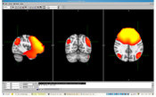 Magnetoencephalography scans