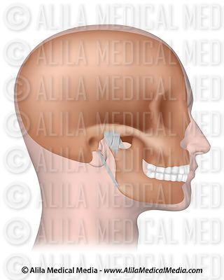 TMJ with ligaments unlabeled.