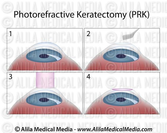 Photorefractive Keratectomy (PRK) surgery