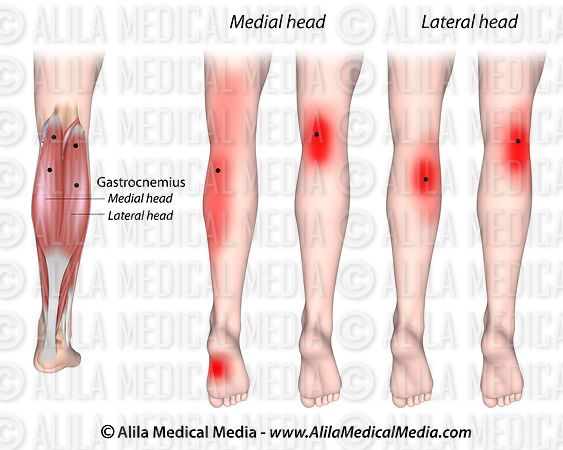 Trigger points and referred pain for the gastrocnemius