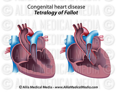 Tetralogy of Fallot unlabeled